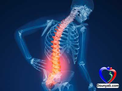نصائح لتفادي هشاشة العظام