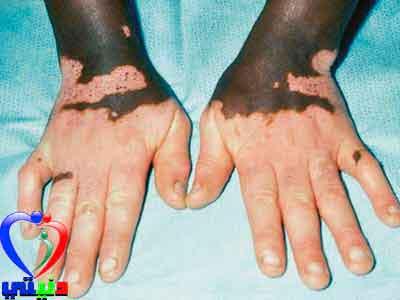 علاج مرض البهاق بالاعشاب