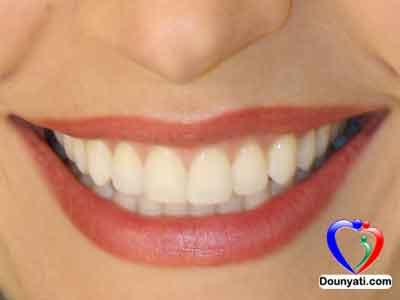 طرق سهلة لتبييض الاسنان